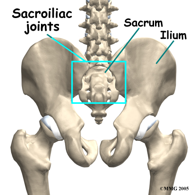 Sacroiliac Joint Pain or Lower Back Pain?