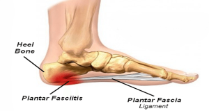 Plantar Fasciitis Heel Bone