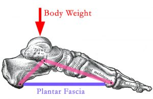 Plantar Fasciitis Body Weight